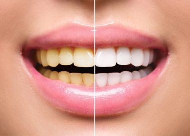 Benefits of Teeth Whitening - Calgary Dentist