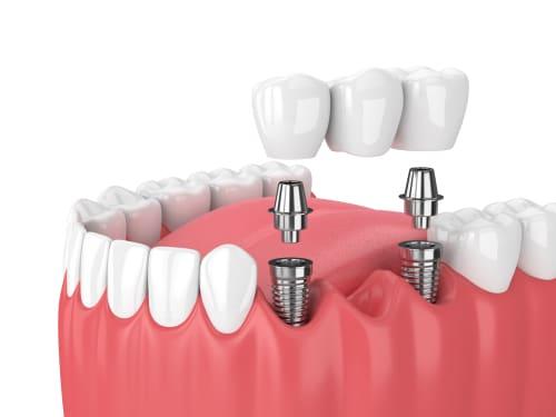 Dental Bridge Replace Missing Teeth Dental Bridge Dentist in Calgary