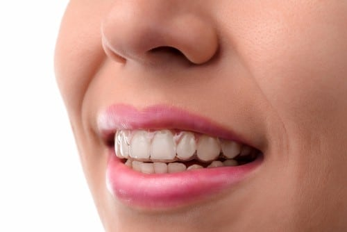Invisible Braces In Calgary | Inglewood Family Dental | Teeth Alignment | Calgary
