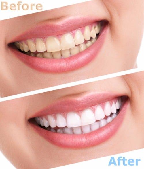 Teeth Bleaching In Calgary | Calgary Dentist | Teeth Whitening | Discolored Teeth