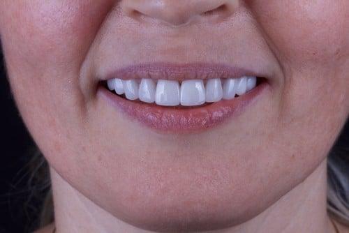 Dental Veneers | Porcelain Veneers in Calgary | Calgary Dentist