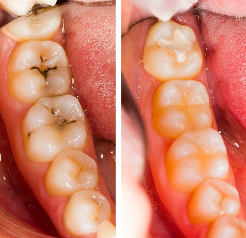 Tooth-Colored Fillings | Inglewood Family Dental | Dentist in Calgary