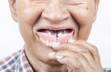 Calgary Dentures 101 What You Need To Know Inglewood Family Dental