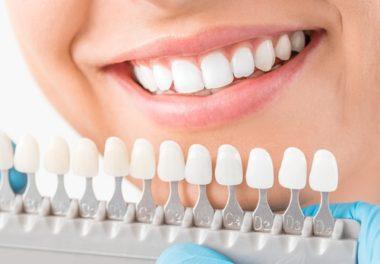 Veneers in Calgary Porcelain Veneers Inglewood Family Dental - Dental Veneers