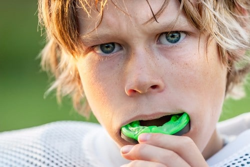 Sports Mouth Guards FAQ's | Dental Mouthguards for Athletes in Calgary
