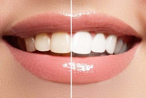 Affordable Teeth Whitening | Calgary Dentist | Inglewood Family Dental
