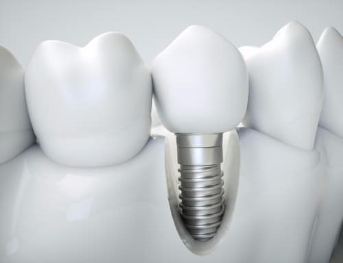 Affordable Dental Implants | Calgary Dentist | Inglewood Family Dental